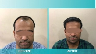 Hair Transplant Before & After